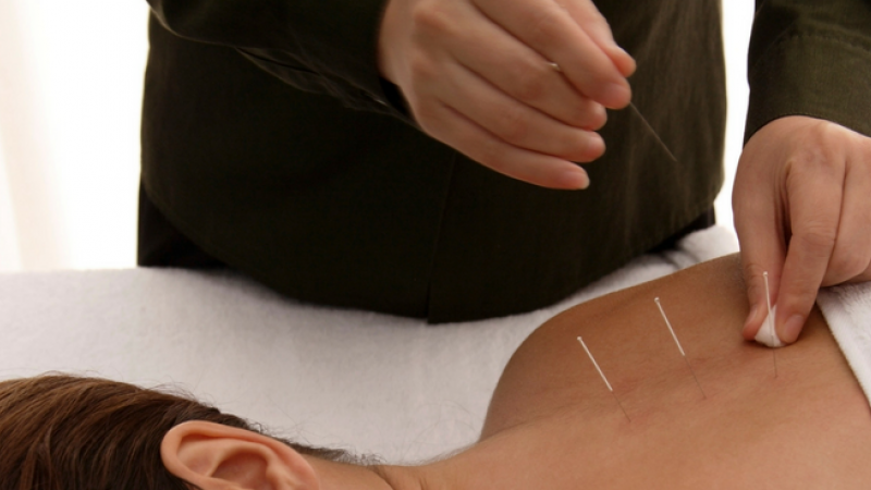 Significance & Effectiveness of Acupuncture in Arthritis ...